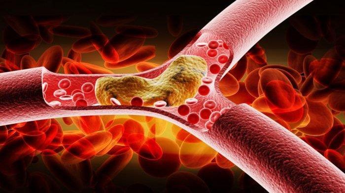 Gejala-gejala Kolesterol dalam Tubuh yang Perlu Diwaspadai, Segera ke Dokter Jika Mengalami Ini