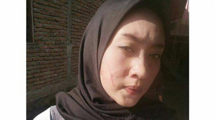 VIRAL! Seorang Wanita Dicakar Oleh Peminjam Uang Saat Menangih Utang