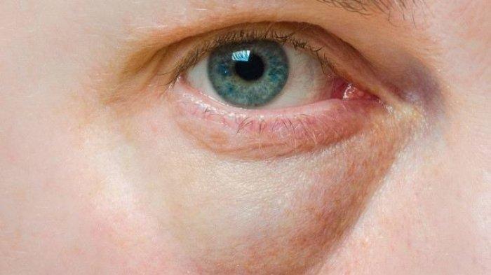 Cara Mudah Mengatasi Kantung Mata yang Bikin Risih, Kompres Mata Hingga Perbaiki Posisi Tidur