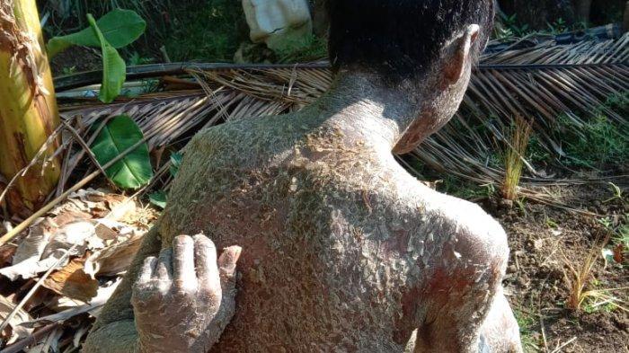 Mohammad Andi (26) saat berjemur di halaman rumah kakaknya Tarya (33) di Desa Arjasari, Kecamatan Patrol, Kabupaten Indramayu.