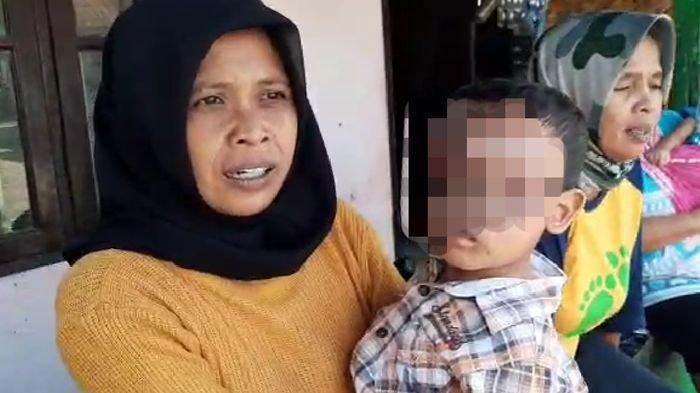 Duh, Wajah Bocah 3,5 Tahun di Kota Tasik Kena Ledakan Petasan, Ibu: Mukanya Hampir Habis Terbakar
