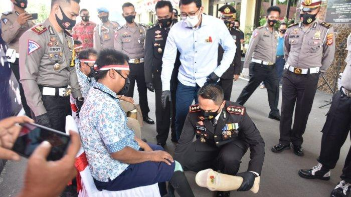 Sejak Kecil Toton Pakai Tongkat untuk Berjalan, Kini Kenakan Kaki Palsu Bantuan Polresta Cirebon
