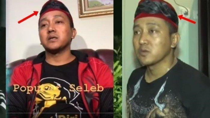 Dikenal Mistis, Peci Hitam 'Kembang' Milik Teddy Ditawar Rp100 Juta, Benarkah Punya Kekuatan Magis?