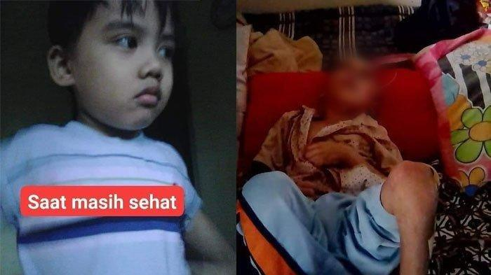 Kisah M Rizki Anugrah, Bocah 7 Tahun yang Viral Dianiaya Orangtua, Kondisinya Sangat Menyedihkan