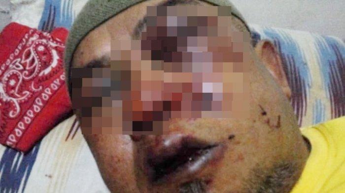 VIRAL Curhatan Seorang Anak, Sakit Hati Lihat Wajah Ayahnya Babak Belur Dipukul Geng Motor di Cimahi