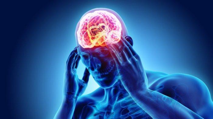 Anda Sering Migrain? Waspada Rentan Terkena Serangan Jantung, Wanita Paling Berisiko