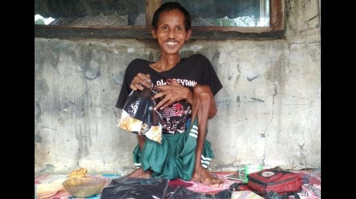 Kisah Ulee Disabilitas Asal Indramayu yang Kakinya Lumpuh, Ingin Hidup Tanpa Merepotkan Orang Lain