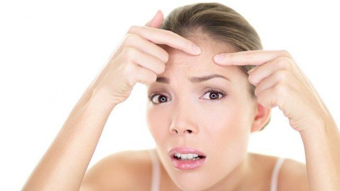 Awas, 7 Kebiasaan Ini Bisa Bikin Wajah Anda Jerawatan, Sering Cuci Muka Hingga Banyak Konsumsi Manis