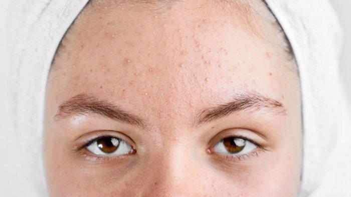 ilustrasi acne vulgaris, simak penjelasan dr. Kardiana Purnama Dewi