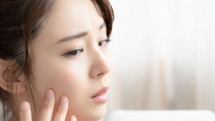 Penggunaan Steroid Topikal Jangka Panjang Menyebabkan Jerawat di Sekitar Mulut