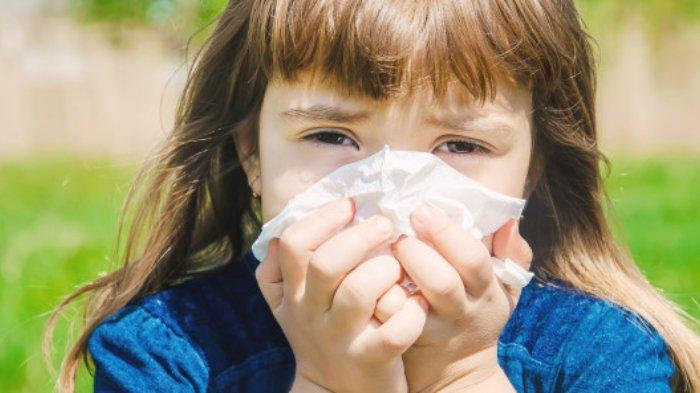 Dokter Sebut Alergi Bukan Penyakit Menular, tetapi Diturunkan Lewat Genetik