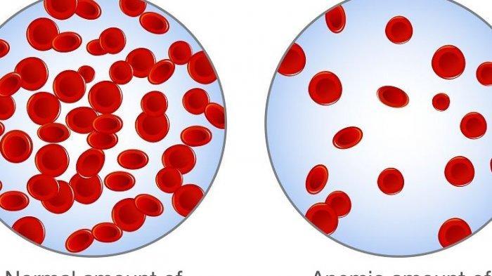 Benarkah Anemia Dapat Dicegah dengan Makanan? Berikut Ulasan Dokter