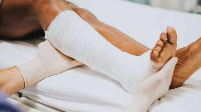 Pergantian Balutan Luka Boleh Dilakukan di Rumah, Asal Sudah Diajarkan Dokter yang Mengoperasi