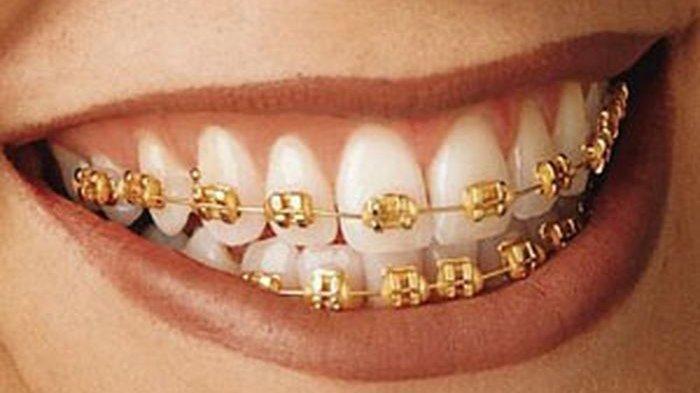 Dokter Ortodonti Menjelaskan Beberapa Dampak Asal Pasang Behel