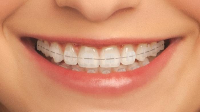 ilustrasi penggunaan behel atau kawat gigi