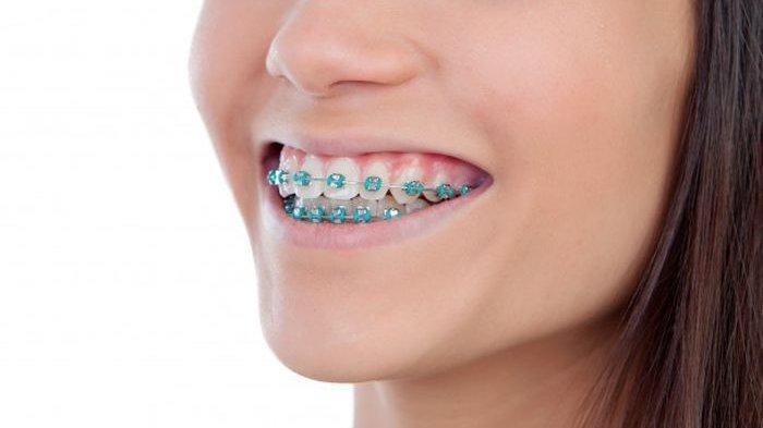 ilustrasi seseorang yang menggunakan behel gigi