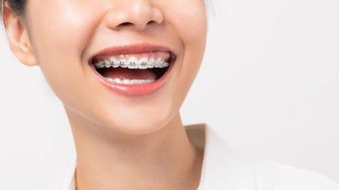Dr. drg. Munawir H Usman, SKG., MAP: Selain untuk Merapikan Gigi, Behel Berfungsi Sebagai Estetika