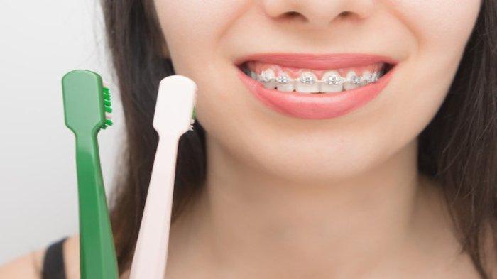 Dr. drg. Munawir H Usman, SKG., MAP Sebut Pengguna Behel Harus Lebih Rajin Menjaga Oral Hygiene