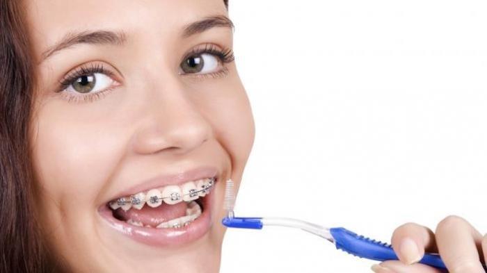 Ilustrasi - Penggunaan kawat gigi