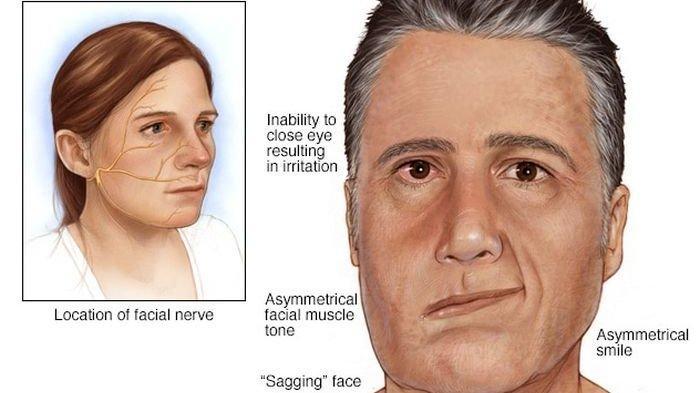 Dokter Menjelaskan tentang Bells Palsy: Penyakit Kelumpuhan Otot pada Wajah