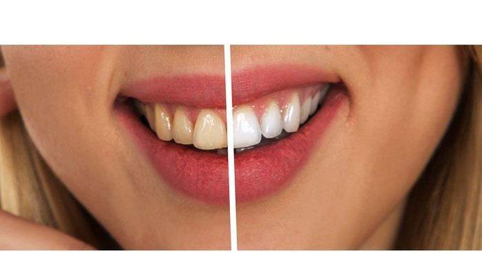 ilustrasi  bleaching gigi