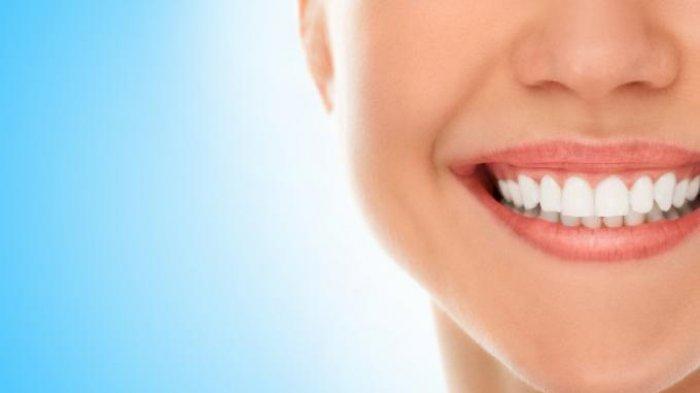 drg. Ummi Kalsum, MH.Kes., Sp.KG Sebut Proses Whitening Tidak Dapat Memutihkan Tambalan Gigi