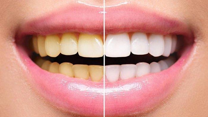 Dokter Sebut Faktor Genetik dan Kebiasaan Sehari-hari Memengaruhi Perubahan Warna Gigi