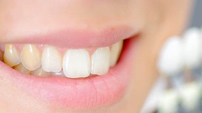 ilustrasi warna gigi semakin  menguning