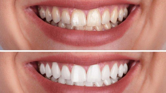 Adakah Kondisi Seseorang Tidak Boleh Melakukan Bleaching Gigi? Simak Ulasan drg. Ummi Kalsum, MH.Kes