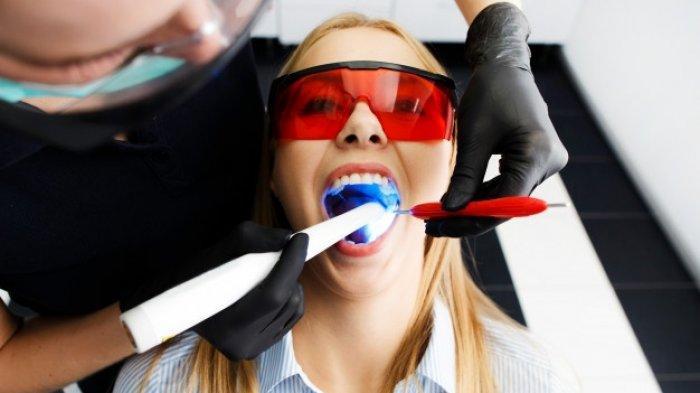 drg. Nadia Yuniastuti Menyampaikan Bertahannya Bleaching Gigi Tergantung Kebiasaan Setiap Individu