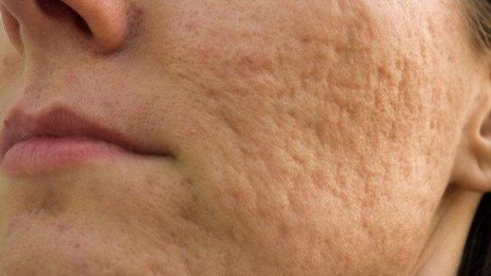 ilustrasi acne scars atau bopeng pada wajah, simak ulasan dr. Kardiana Purnama Dewi