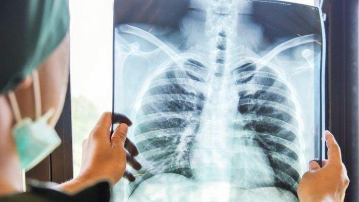 ilustrasi penyakit brokitis