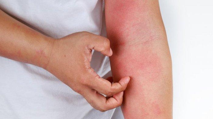 ilustrasi dermatitis atopik pada bagian tangan