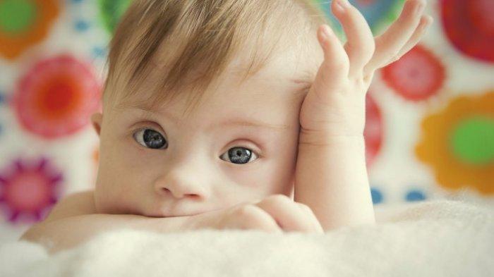 Apakah Ada Ciri Khas Perilaku Anak-anak Down Syndrome dengan Anak Lain Dok?