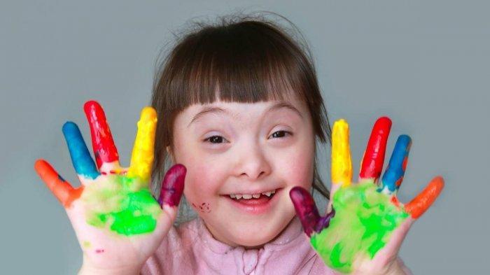 Keterbelakangan Mental dengan Down Syndrome Itu Beda atau Sama Ya Dok?