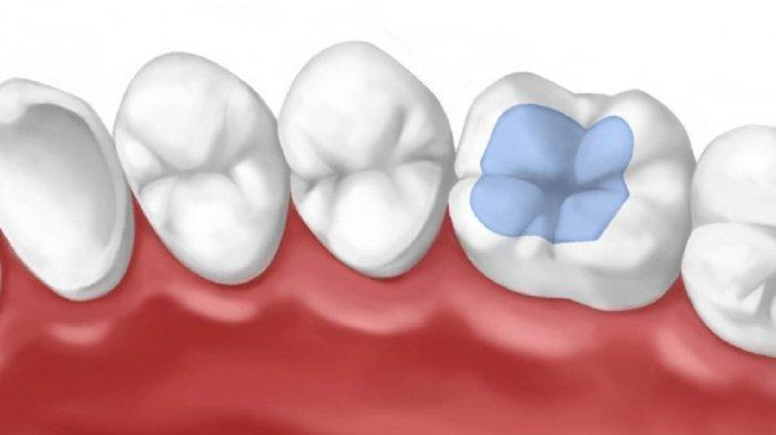 Bahan Fissure Sealant Dikeraskan dengan Bantuan Sinar atau Menggunakan Bahan Dasar Glass Ionomer.