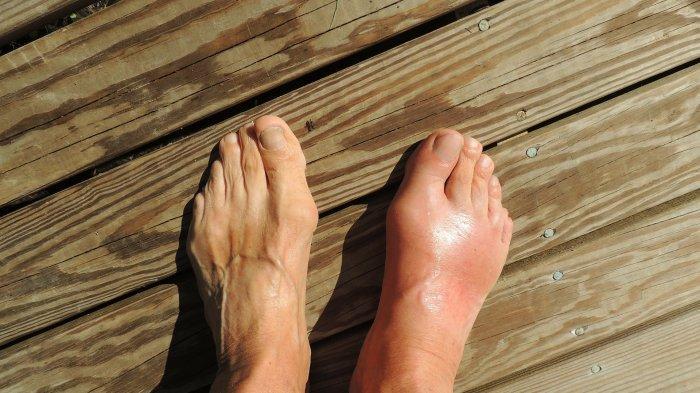 Ilmuwan Jelaskan Penyebab Covid Toe, Peradangan Jari Kaki Akibat Infeksi Virus Corona