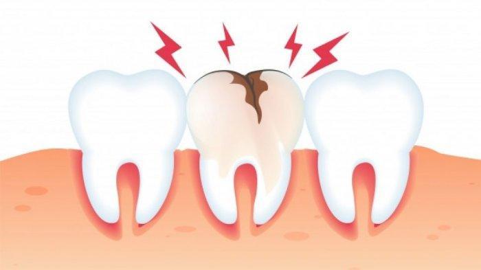 Tindakan Fissure Sealant untuk Mencegah Perluasan dan Kedalaman Lubang Gigi yang Dibentuk Bakteri