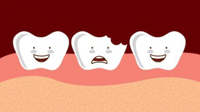 drg. R. Ngt. Anastasia Ririen Sebut Prevalensi Terjadinya Karies Gigi Sangat Tinggi, Simak Ulasannya
