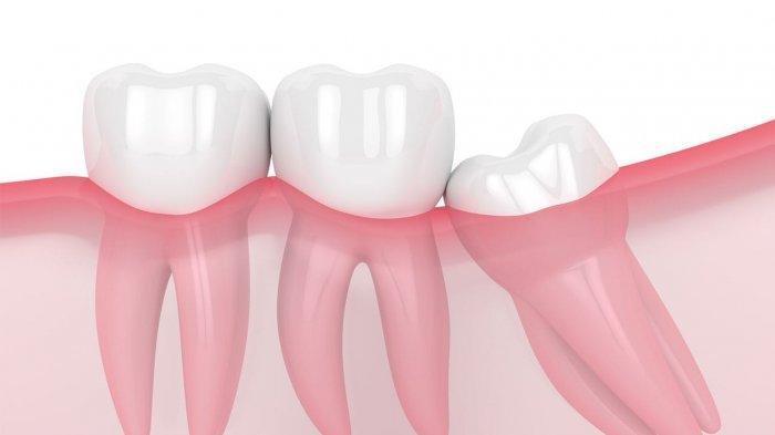 Simak Penjelasan Dokter soal Gigi yang Tumbuh Miring, Amankah Dibiarkan Tanpa Tindakan?