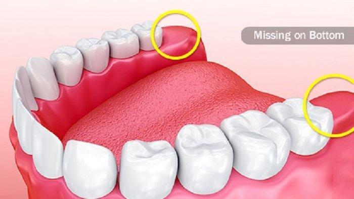 Cara dan Tips Menjaga Kesehatan Gigi Bungsu yang Disampaikan oleh drg. Anastasia