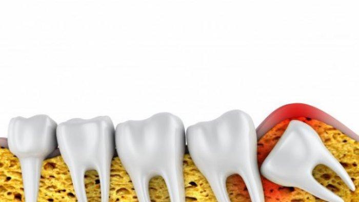 Dokter Ulas Gejala Tumbuhnya Gigi Bungsu yang Kerap Menimbulkan Keluhan