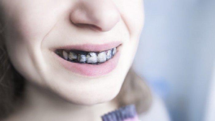 Adakah Tindakan untuk Mengatasi Gigi Hitam? Simak Ulasan Dr. drg. Munawir H. Usman, SKG., MAP