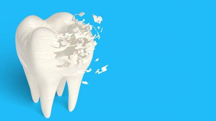 Ilustrasi pengeroposan gigi, simak penjelasan drg. Ummi Kalsum, MH.Kes., Sp.KG.