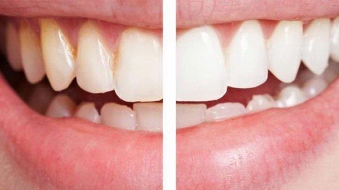 Benarkah Zat pada Rokok dapat Mempengaruhi Warna Gigi? Berikut Ulasan Dokter Munawir H. Usman