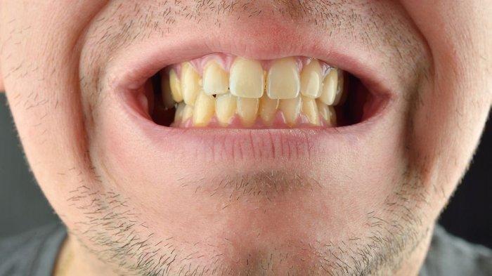 ilustrasi gigi kuning