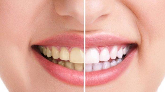 Ilustrasi gigi kuning, drg. Ummi Kalsum, MH.Kes., Sp.KG. sebut