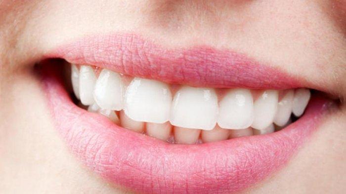 Dokter Gigi: Seiring Bertambahnya Usia, Gigi Kuning Bisa Dialami Oleh Semua Orang