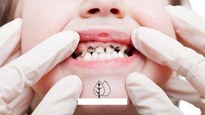 Benarkah Gigi Berlubang Sering Dikaitkan dengan Gangguan pada Mulut? Simak Penjelasan Dokter