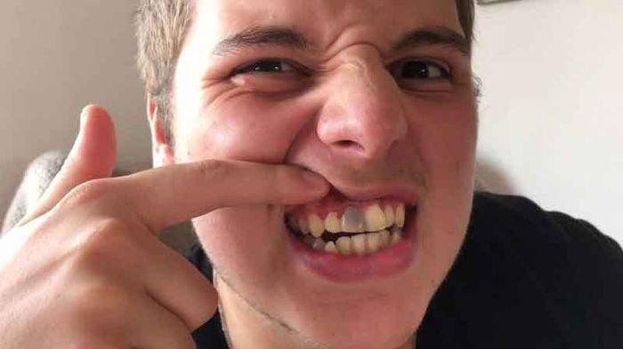 Mengenal Penyebab, Gejala dan Cara Mengatasi Gigi Mati menurut Dokter